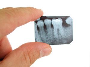 Сделаем рентген зуба быстро и недорого!