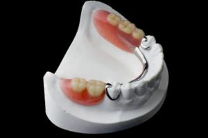Съемные протезы зубов Вологда
