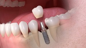 Качественная установка имплантов зубов в Вологде