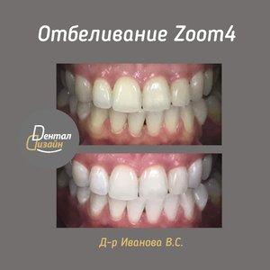 Отбеливания зубов Zoom4