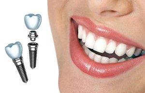 Имплантация зубов по доступным ценам Вологда