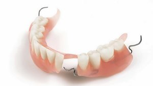 Услуги стоматологии по протезированию зубов в Череповце