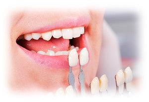 Записаться на реставрацию зубов в Череповце