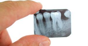 Сделать рентген зуба безопасно и быстро
