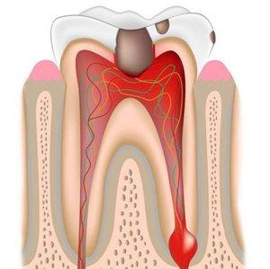 Лечение острого периодонтита зубов в Череповце