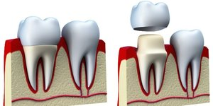 Восстановление зубов с помощью керамических коронок