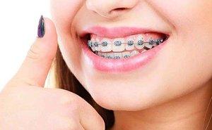Установка брекетов для выравнивания зубов в Череповце