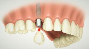 Качественная имплантация зубов в Вологде