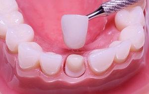 Процесс установки зубных коронок