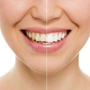 Отбеливание зубов по технологии ZOOM в Вологде