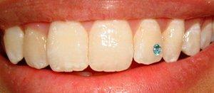 Скайсы-стразы для зубов