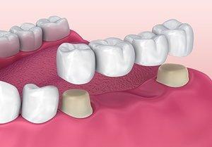 Что такое зубная коронка
