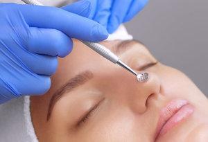 Механическая чистка лица у косметолога