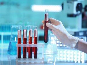 Принимаем биохимический анализ крови у взрослых и детей!