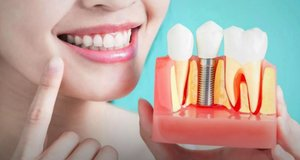 Имплантация зубов в Череповце