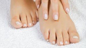 Лечение грибка ногтей на ногах в Вологде
