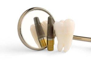 Обзор дентальных имплантов используемых в центре стоматологии «Эстетика»