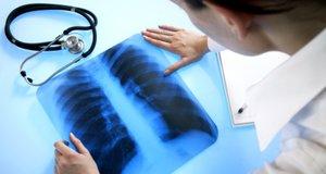 Сделать рентген в Вологде