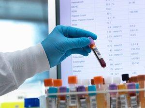 Анализ крови на гормоны у женщин в Вологде