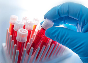 Сдать кровь для анализа на ВИЧ в Вологде