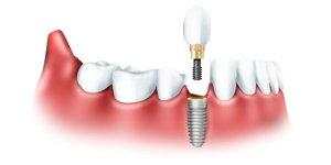 Протезирование зубов в Череповце