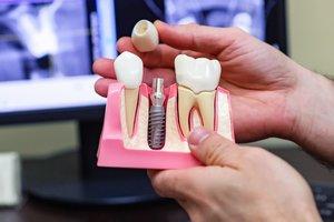 Имплантация зубов Вологда