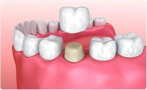 Качественная установка коронок на зубы