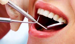 Где можно вставить зуб в Вологде?