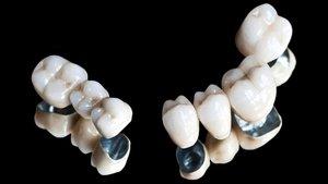 Установить протезы из металлокерамики в Вологде