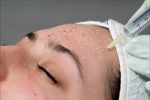 Сделать биоревитализацию кожи лица в Вологде