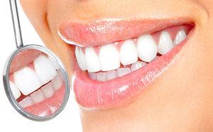 Услуги профессиональной чистки зубов в Вологде