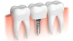 Где делают имплантацию зубов в Вологде?