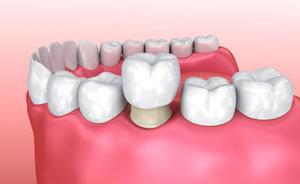 Какие коронки на зубы лучше: обзор вариантов