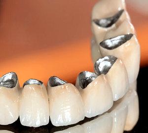 Изготовление металлокерамических коронок на зубы