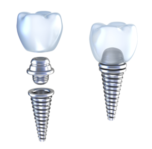 Установить зубные импланты в Череповце