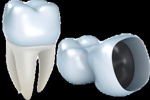 5 вопросов о протезировании зубов