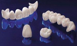 Протезы из безметалловой керамики