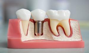 Все, что нужно знать об отторжении зубного импланта