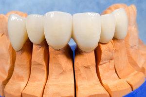 Установить коронки на зубы из гипоаллергенных материалов