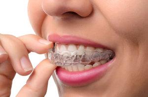 Исправление прикуса зубов при помощи элайнеров