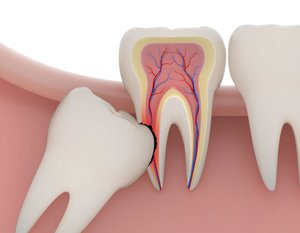 Ретинированные зубы мудрости