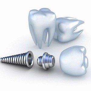 Имплантация при полном отсутствии зубов. Возвращаем красивую улыбку!