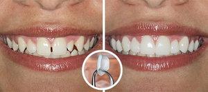Вам нужны виниры на зубы? Обращайтесь!