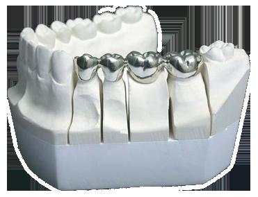 Литой зуб в Череповце