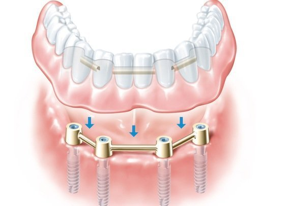 Установка зубных имплантов в Череповце