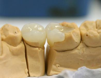 Восстановительные вкладки на зубы в Красноярске - «Альберг»