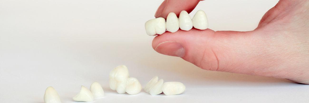 Зубные коронки в Красноярске - «Альберг»