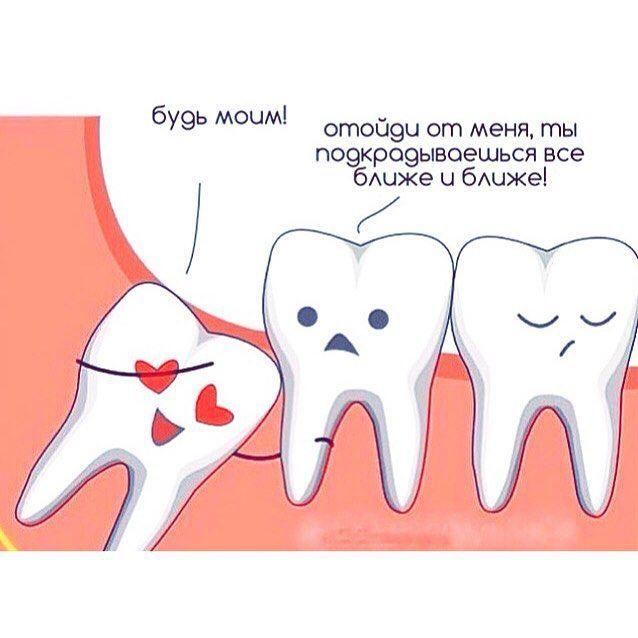 Удаление зачатков зубов мудрости